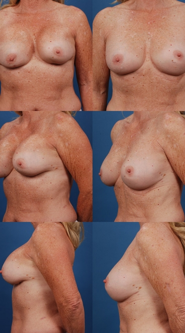 Breast Augmentation Revision with Capsular Contracture- Case C