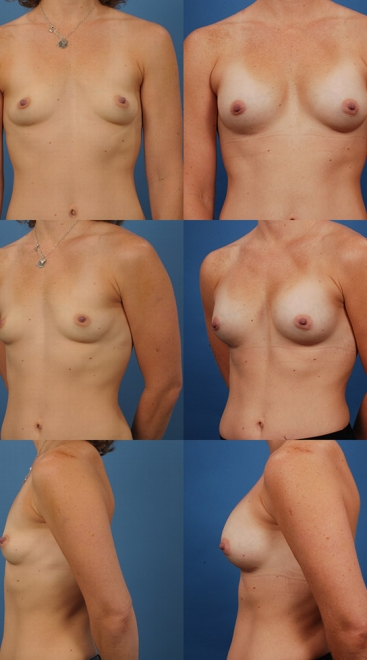 Form Stable Breast Implants Case O