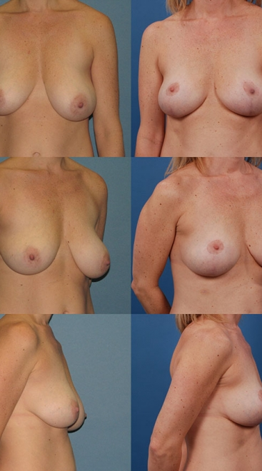 Breast Lift Case F