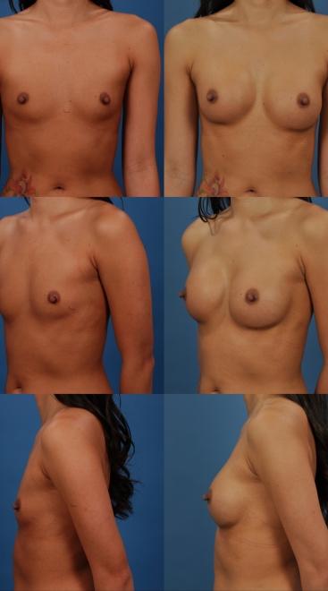 Breast Augmentation- Case 27