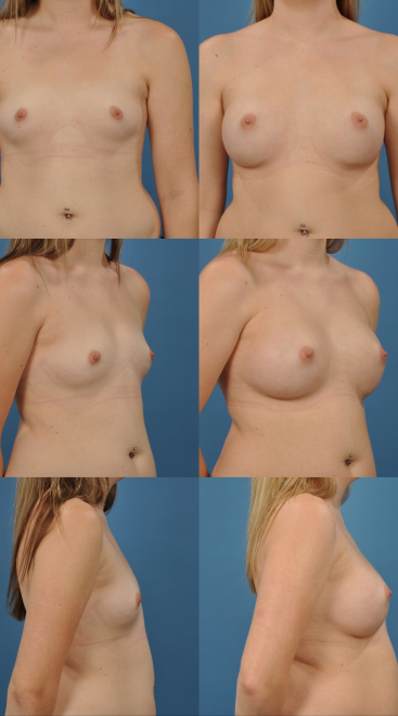 Breast Augmentation- Case 9