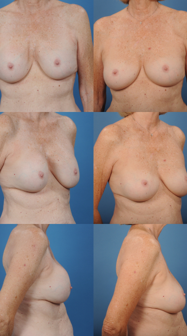 Breast Augmentation Revision with Capsulectomy- Case 4