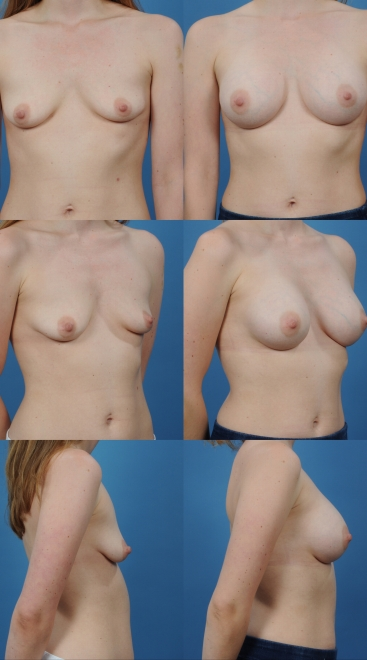 Breast Augmentation- Case 3
