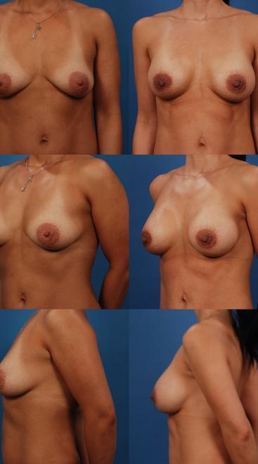 Breast Augmentation – Case 20