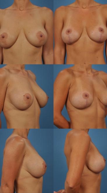 Revision Breast Augmentation- Case X