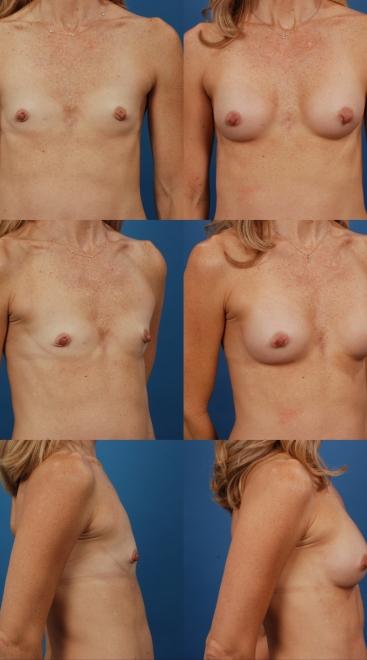 Breast Augmentation- Case V
