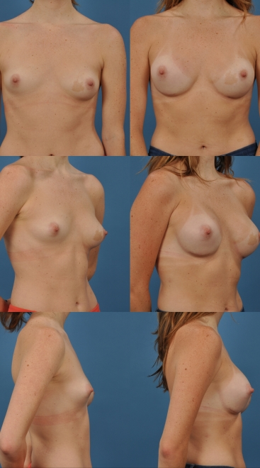 Breast Asymmetry Case- B