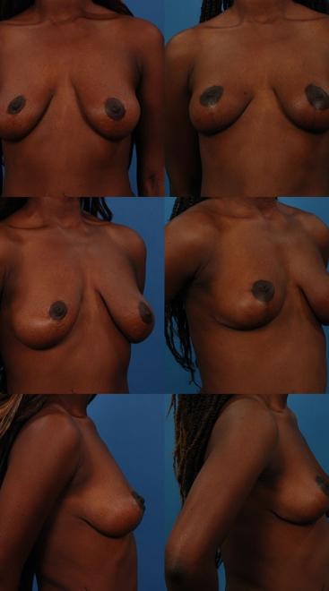 Breast Lift Case C