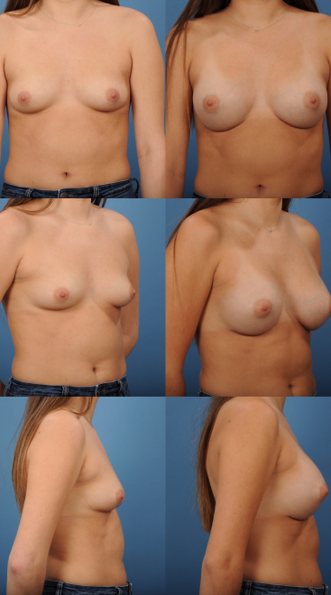 Breast Augmentation- Case 66