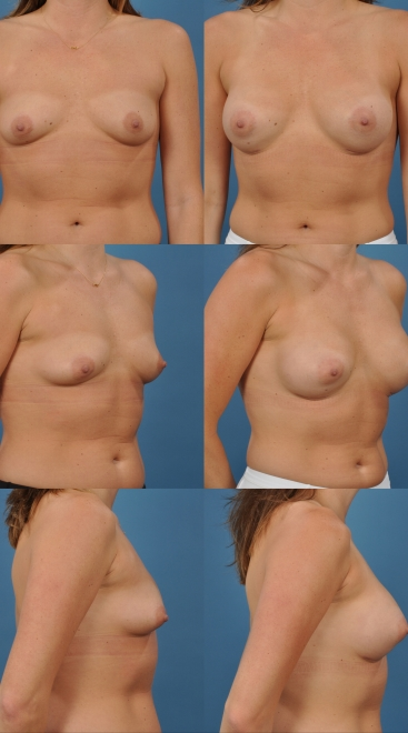 Breast Augmentation- Case 29