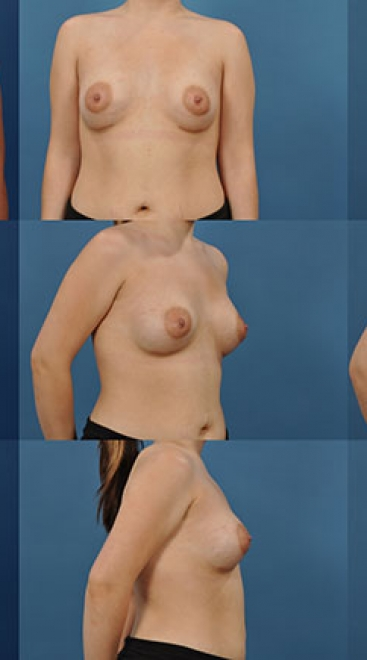Breast Augmentation with Constricted Breast- Case A