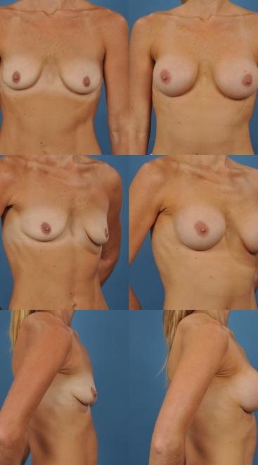Breast Augmentation- Case 42