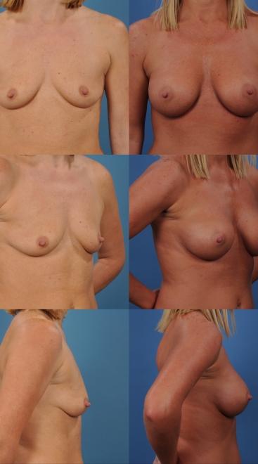 Breast Augmentation- Case 40