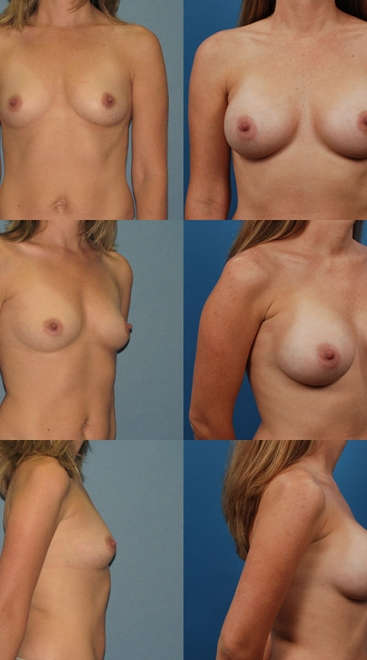 Breast Augmentation – Asymmetry Case C