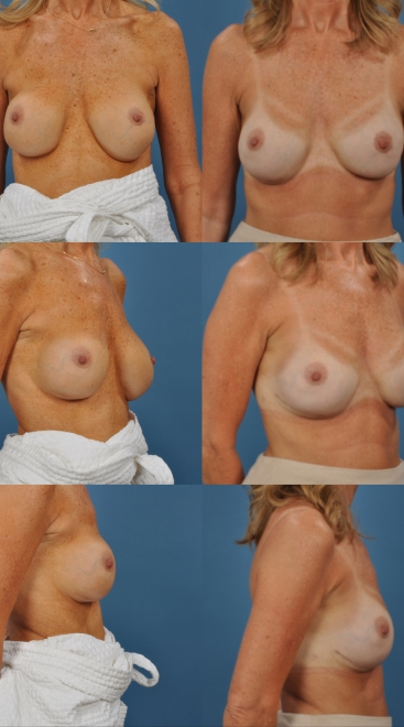 Revision Breast Augmentation- Case 2