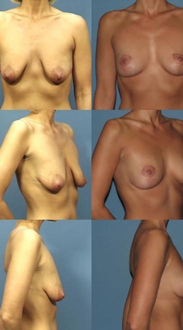 Breast Lift Case B