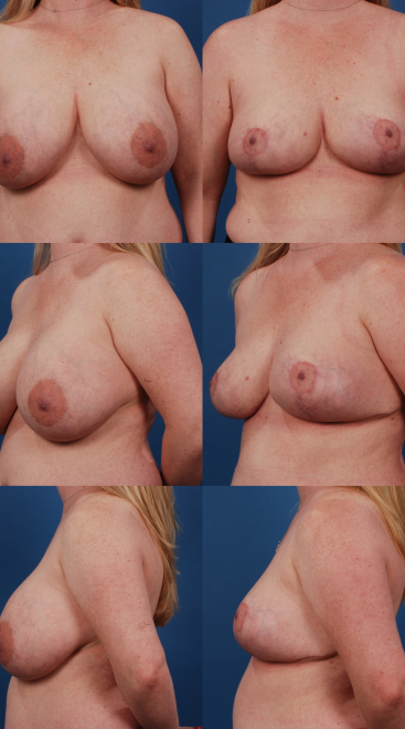 Implant Removal with Breast Lift- Case 8