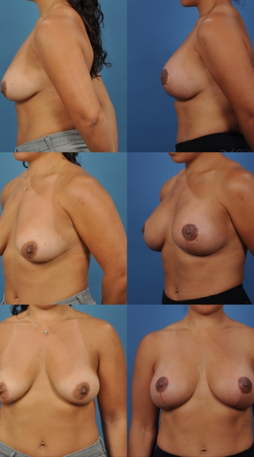 Augmentation with Breast Lift- Case 1