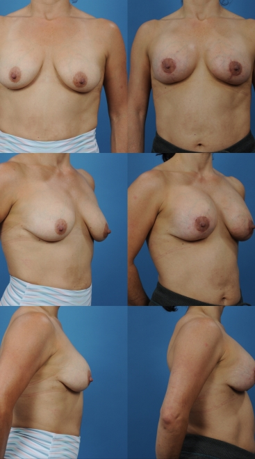 Augmentation with Breast Lift and Placement of Supportive Scaffold- Case 6