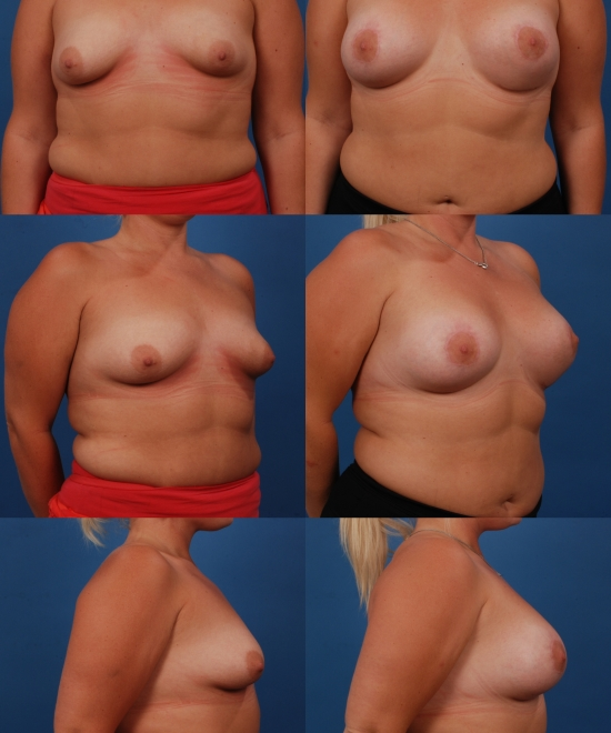 Breast Augmentation with Nipple Repositioning Case C