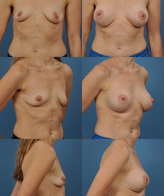 Breast Augmentation with Nipple Repositioning Case A