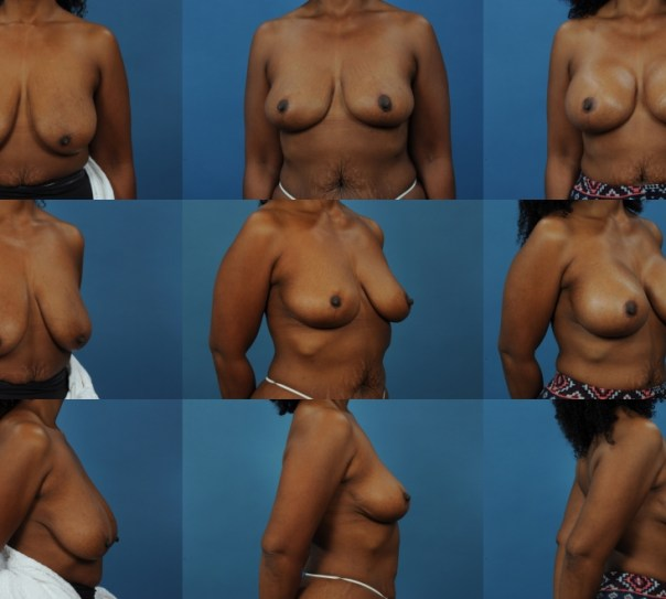 2 Staged Augmentation with Breastlift- Case