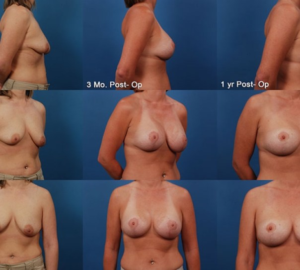 Augmentation with Breast Lift- Case 7