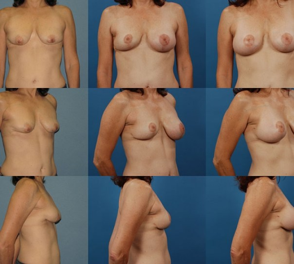Breast Augmentation Revision- Case 3