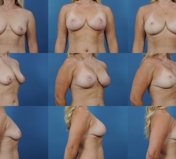 Augmentation with Breast Lift- Case 15