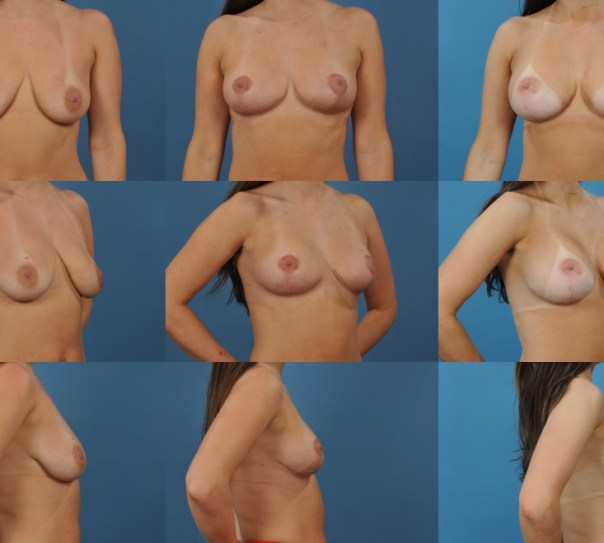 Two Stage Mastopexy with Augmentation Case H