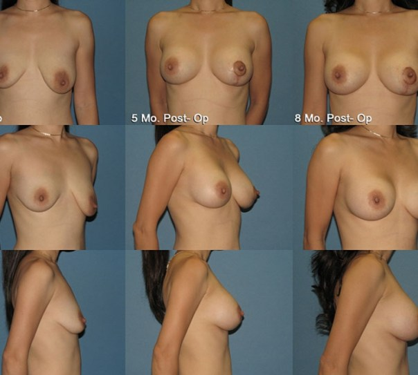 Augmentation with Breast Lift- Case 13