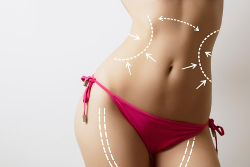 Who is a Great Candidate for Liposuction? Dr Frati Cosmetic Surgery