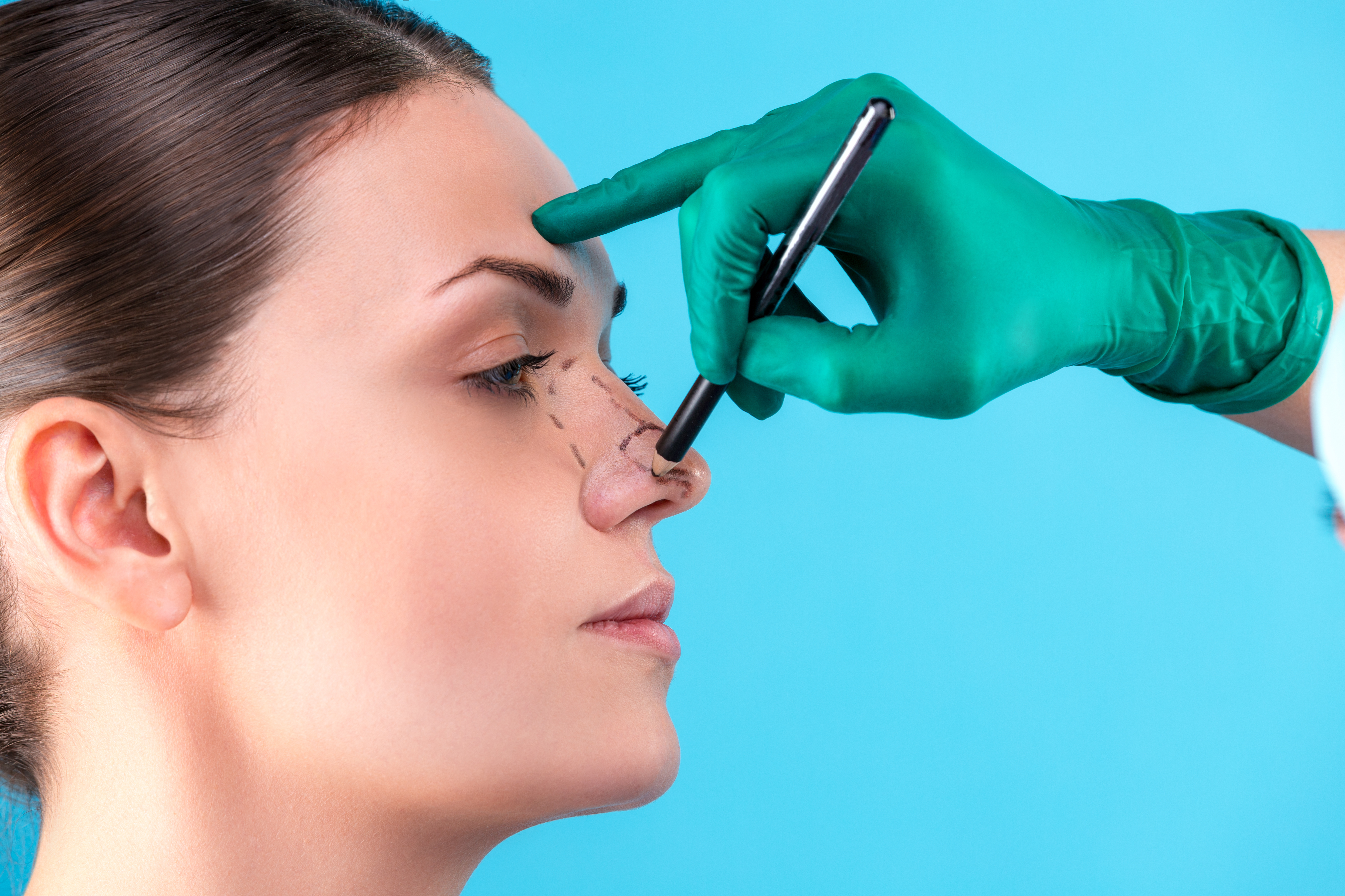 Recovery Time After Rhinoplasty