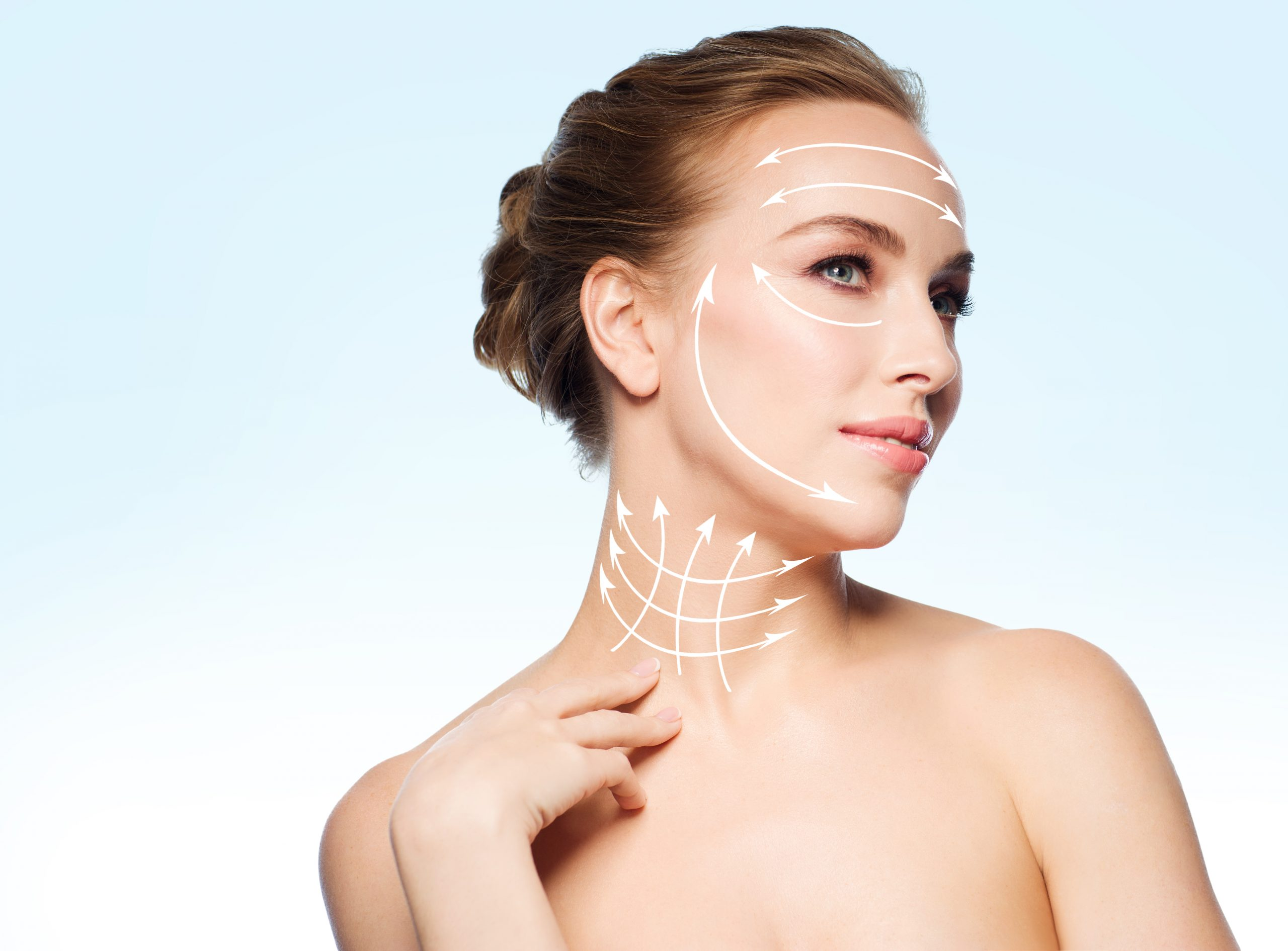 Face and Neck Lift