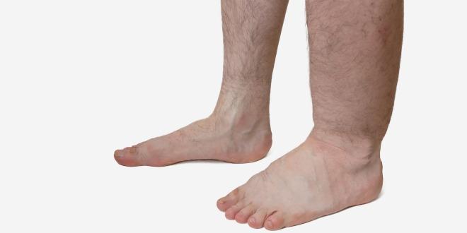 thrombose im bein