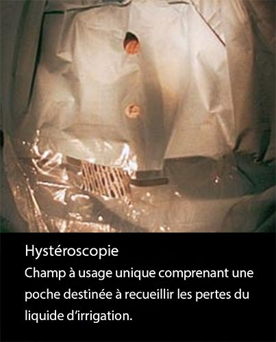 Hystéroscopie 5
