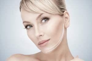lifting cervico-facial visage et cou, mini-lift
