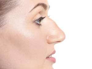 rhinoplastiechirurgie esthétique montpellier