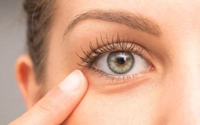 Tipos de olheiras e seus tratamentos