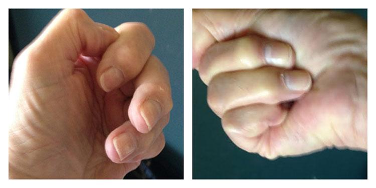 HALO-Treated-Hands.jpg