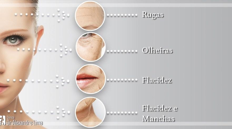 Luz-Pulsada-Rugas-Olheiras-Flacidez-Manchas-Dr-Alexandre-Lima-Dermatologista-Belo-Horizonte-BH-Mulher