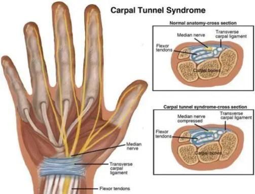 Sindrome del tunnel carpale ElPaso Chiropratico