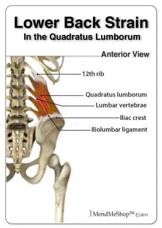 Quadratus Lumborum Strain - El Paso Chiropractor