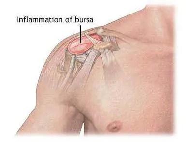 Shoulder Bursitis - El Paso Chiropractor