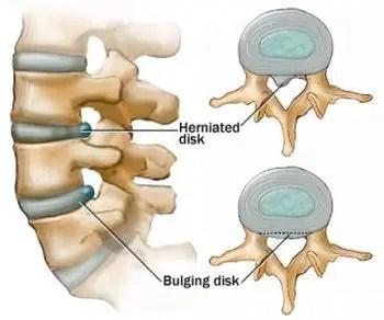 Herniated Disc Vs Bulging Disc