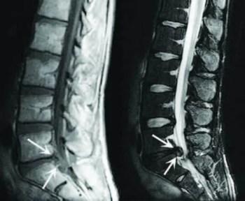 Lumbar Spine Disc Herniation Imaging - La Kiropractor