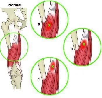 Sitio Anatómico de Lesión Muscular - El Paso Chiropractor