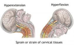 Diagrama cervical El Paso Quiropráctico