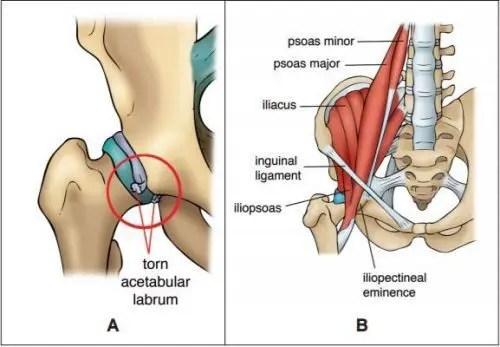 Anatomía de la cadera Diagrama - El Paso Quiropráctico