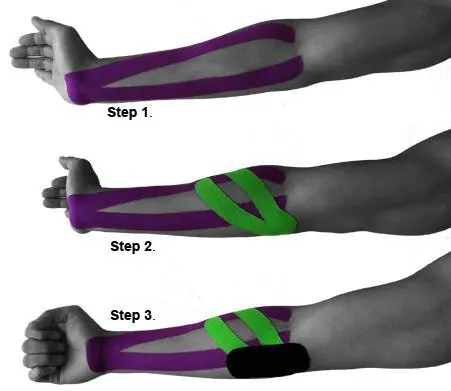 blog picture of male arm in three stages with kinesiotape applied to the forearm